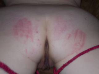 my ass after a spanking from my mistress