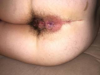 My wife\'s hairy ass and pussy after a long night of cock!!