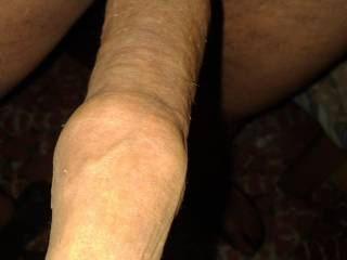 skin of uncut dick