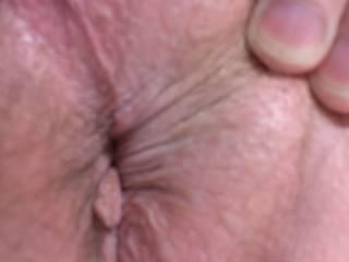 Detail shot of my anus