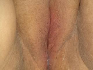 My wife's pussy after I filled it with cum