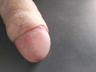 Foreskin skinned back just a little.