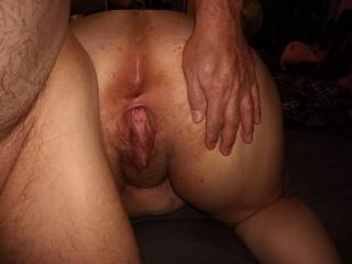 Open asshole gaping pussy