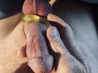 Swollen penis and balls in cockring.