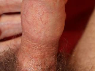 If I had just cum inside you, pulled out and eased my foreskin forwards this is just how i would lool, moist and still subsiding unevenly.