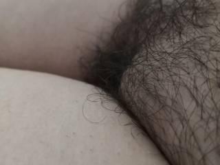 Hair or bald
