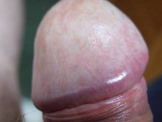 Close up of my dick is very relaxed state, thinking about foreskin restoration-what do you think?