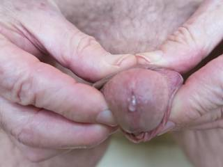 Mr. F attempts to demonstrate for me, without much success, what he would look like with a foreskin!  From Mrs F