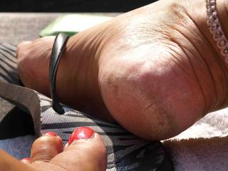 Feet and rough soles/heels in the sun