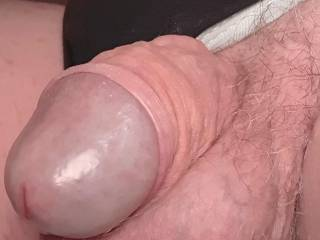 My foreskin pulled back.