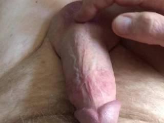 Swollen penis.