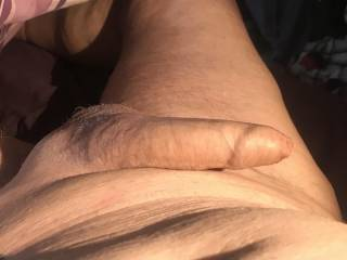 Do you eant to see under my foreskin