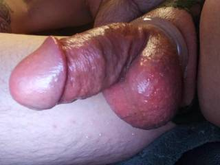 Picture of my penis