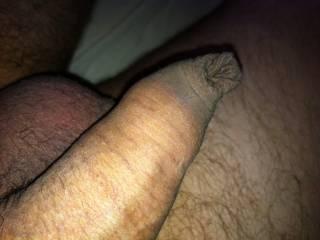 uncut dick head