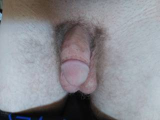 I like this photo if my soft white circumsized weiner. What do you guys think of it?