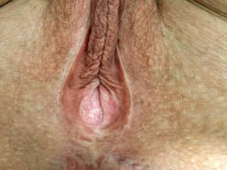 Butthole spread