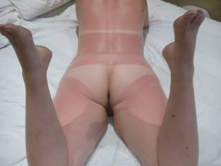 Since you are do not have any stinging pain I'm going to spank that lovely bottom until it looks the same color as the rest of your body ( be warned it might sting a little) 😏