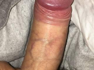 Foreskin pulled back