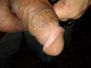 my penis flaccid with the foreskin down