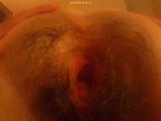 The wife has a huge gaping hairy pussy, easy arm fisting for friends