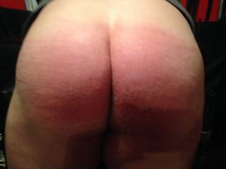 My well spanked ass after a session with my professional disciplinarian