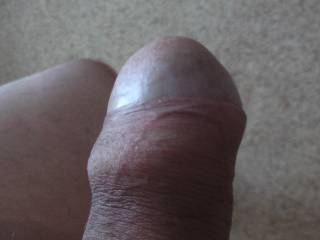 A little bit of foreskin,does my gland look good covered?