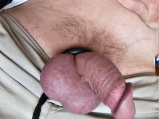 I am cultivating a patch. Need to have a cystoscopy soon and don\'t know if I should be smooth or a little bit hairy. Need advice.
