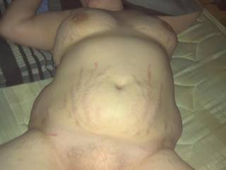 Wonderful !. Love your natural stretch marks...and great looking pussy too !