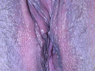 Lover\'s wet pussy. Check out the big clit.