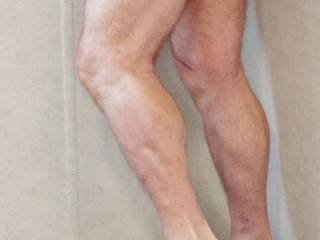 Ms. Doooobe says I have great legs and women on Zoig say they want more than dick pics. These are my 68 year-old legs.