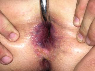 Gaping asshole after good anal fuck with anal hook in ass at same time