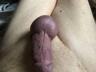 Swollen cock and balls from cockring.