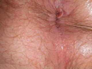 Hair anus only visible on detail photo