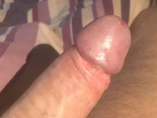 Now my foreskin is pulled back what would you like to do?!