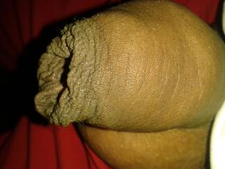 Un cut cock but i not have frenulum because one day i was  very very hot. i have very erected my cock when frenulum broken