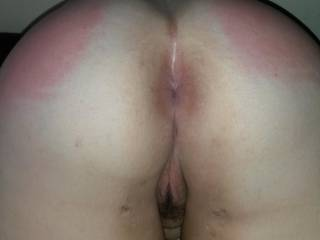 A young lady friends freshly spanked ass.