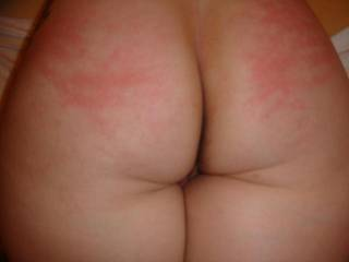 that lovely bum looks a bit sore - hope it got kissed better afterwards