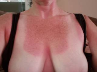 Got a little sunburn yesterday.  Hubby says semen will stop the stinging, does anybody want to spray me with theirs so I can rub it in?