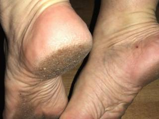 These dirty soles a wet tongue treat..... Any volunteers?