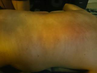 Whipped after a massage at a recent swingers party.