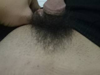 That photo is mine. I have just finished circumcised