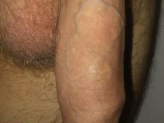 So many veins.