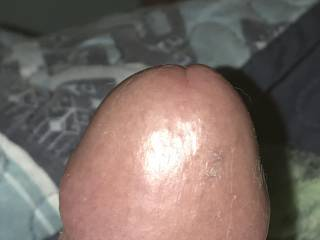 More cock head. What do you all think ??