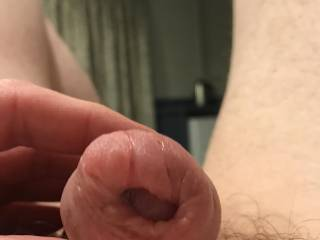 After severely pumping my cock. Foreskin got so puffy. Loved it. What do you think?