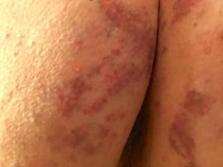 yet another view of my lovely welts from a very fun play date!