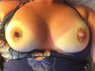 Lovely crinkly skinned areola round those stunning organ stop nipples I just want to suck. You've burnt the skin on your tits 'cos you didn't larrop suntan  factor 25+ on them....
