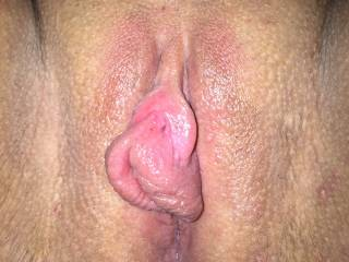 Wife's pussy after using our new pump :-)
