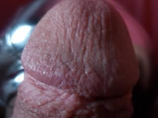 My head up close