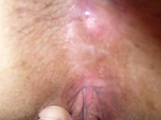 Just a close up of my swollen clit after masterbating