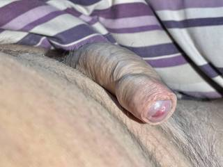 As I open my eyes in the morning and find my cock like this  ? What should I do ?